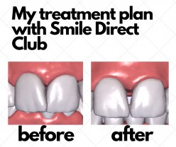 Smile Direct Club Review: Nothing to Smile About