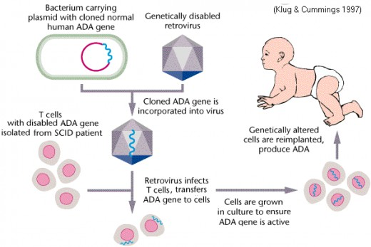 Pic: Gene therapy to treat SCID