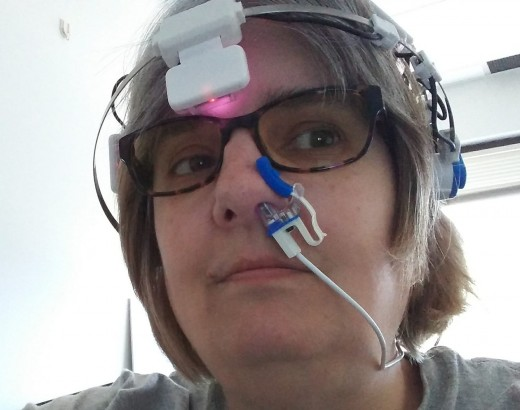This is me wearing the photobiomodulation device.