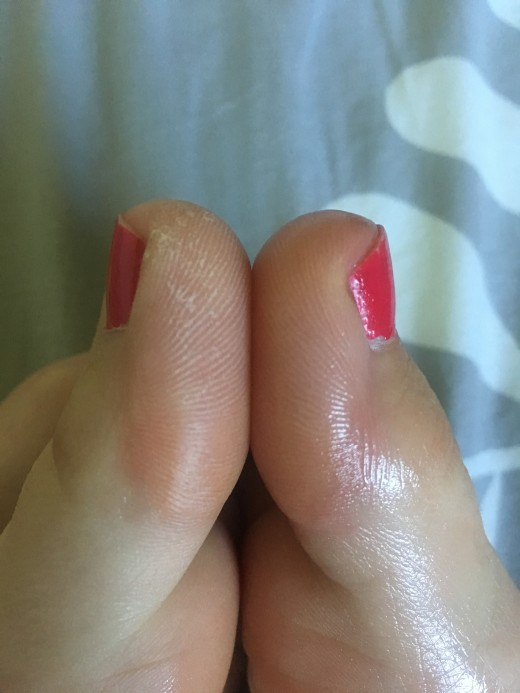 Side by side big toes before and after. The results last for hours as long as feet don't get wet.
