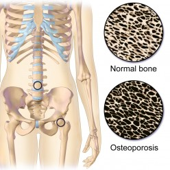 Key Information About Osteoporosis