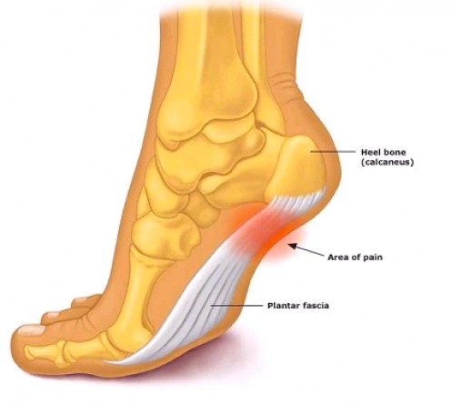 How to Help Plantar Fasciitis Heel Pain