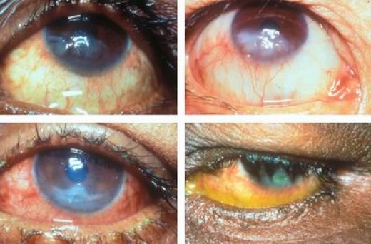 Reprinted from http://www.medical-look.com/diseases_images/Keratitis.jpg