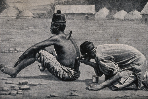 An African medicine man or shaman cupping a patient.