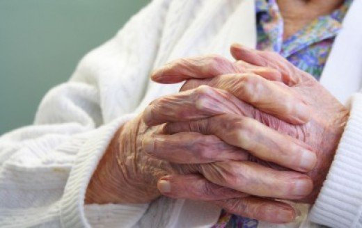 Elderly people often develop age spots on their hands.