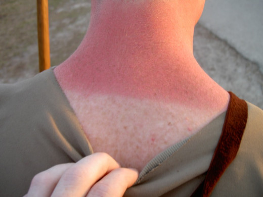 Sunburn can be painful and may lead to skin cancer.