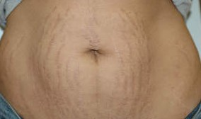 Stretch marks become most noticeable during weight loss and will continue to become more prominent as the person gets closer to goal weight.