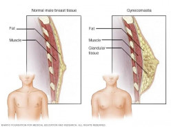 Gynocomastia