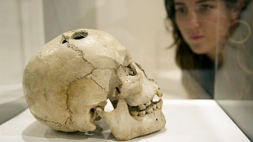 A bronze age skull from Jericho, dated to between 2200 and 2000 BCE showing signs of trepanation.