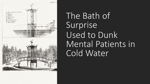 A perverse way to sedate patients by dunking them in ice-cold water.