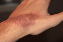 Scars: A Treatment to Limit Their Appearance After a Burn