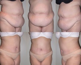 Extreme Weight Loss Skin Tummy Tuck Abdominoplasty The