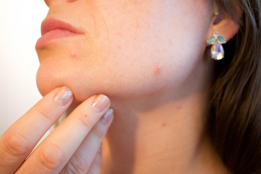 Acne anywhere on the body is an annoyance but back acne can be particularly irritating.