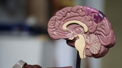 What You Need to Know About Stroke?