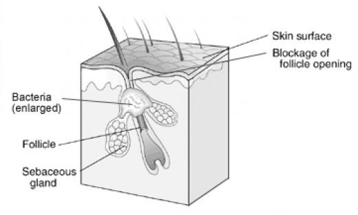 Blocked Skin Pore