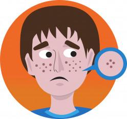 Resolve Acne With No Medicine & Remedy