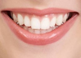 Brilliantly white teeth can be achieved with laser teeth whitening treatment.