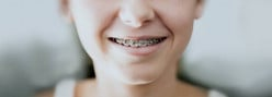 Everything You Need to Know About Having Braces