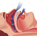 Sleep Apnea - Getting A Diagnosis