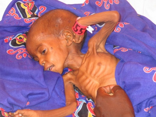 Child suffering from starvation in Darfur