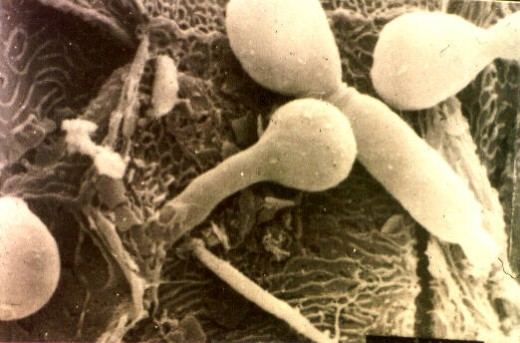 Some of the symptoms of candida are a result of the candida working its way into body tissue, as is seen here.