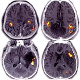 Functional Magnetic Resonance Imaging (FMRI) Scans
