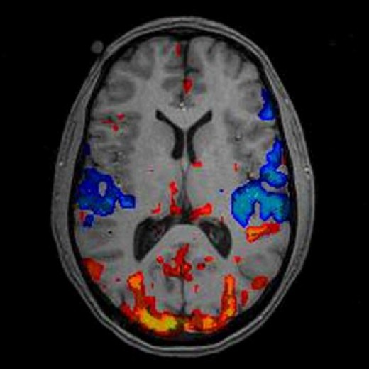 Colored areas during FMRI measure oxygen levels in the blood. This is a clear indication of brain activity in selected areas.