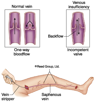 Varicose veins surgery