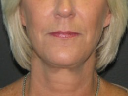 After Cosmetic Face Lift Surgery