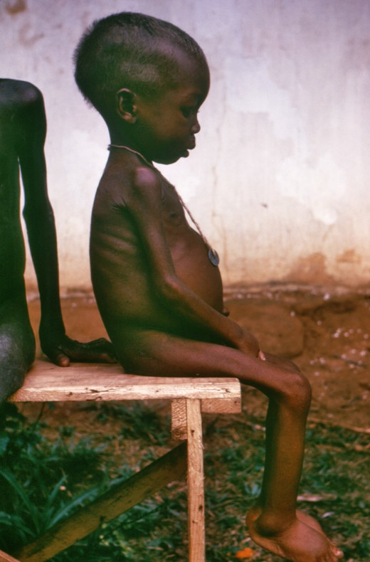 This late 1960s photograph shows a seated, listless child, who was among many kwashiorkor cases found in Nigerian relief camps during the Nigerian–Biafran war. Kwashiorkor is a disease brought on due to a severe dietary protein deficiency, and this c