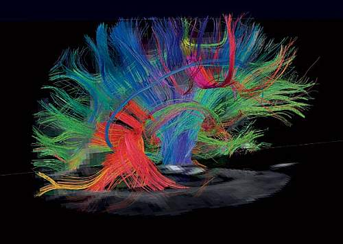 Brain activity - MRI scann