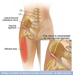 SUFFERING FROM MERALGIA PARESTHETICA-NERVE COMPRESSION?