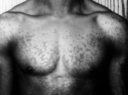 Tinea versicolor on a man's chest.
