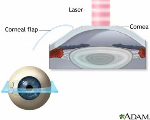Today, most eye surgery procedures were performed using LASIK technique by permanently remodeling the shape of the cornea (the clear covering of the front of the eye) under the flap with with the laser.