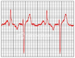 ECG Pattern of the Heart. Photo from:http://www.topnews.in/healthcare/sites/default/files/ECG_0.jpg