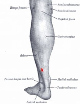 "Plantar Fasciitis Information: Soleus muscle with most distal trigger point indicated by red ""X."""