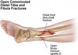 GENERAL SIGNS AND SYMPTOMS OF FRACTURE