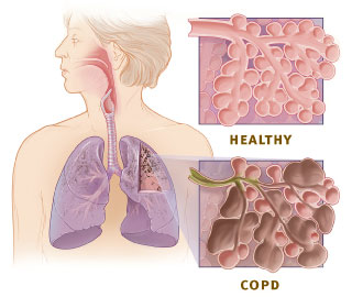 Healthy versus Unhealthy Alveoli courtesy of The National Institute of Health