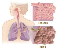 How Do You Know When You Are in a COPD Crisis?