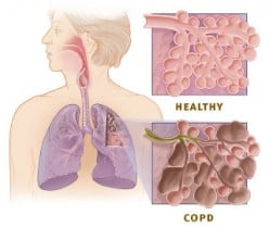 How Do You Know When You Are In COPD Crisis?
