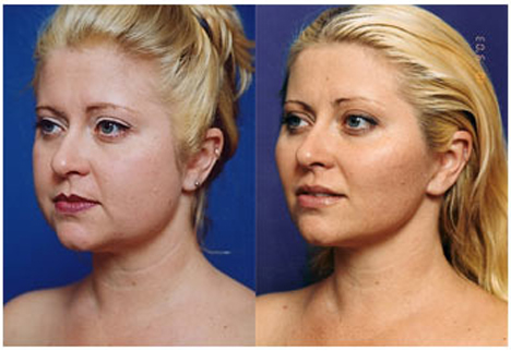 The looks and appearance of face changed of this lady after undergoing a face lifting surgery.