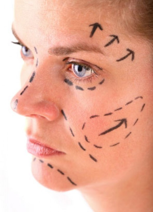 Some common incision sites for face lifting surgery.