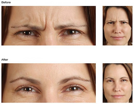 Botox effects