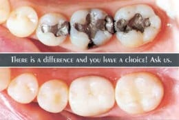 The difference between modern white composite fillings and old amalgam ones