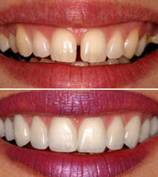 Veneers can also close that gap in your smile