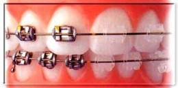 Braces, especially for children, may be needed. They can help a child have a perfect smile in adulthood