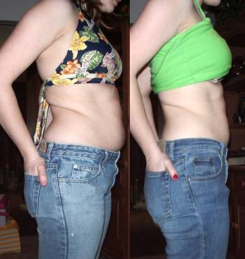 Appearance of abdomen after undergoing liposuction procedure.