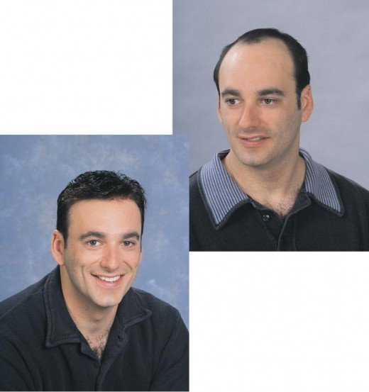 Hair Transplantation Procedure before and after pic.