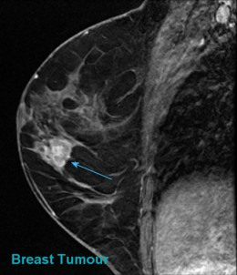 MRI of breast with tumor