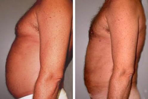 Male stomach liposuction [lipoplus.com]